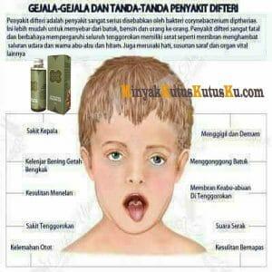 Gejala dan Tanda Penyakit Difteri
