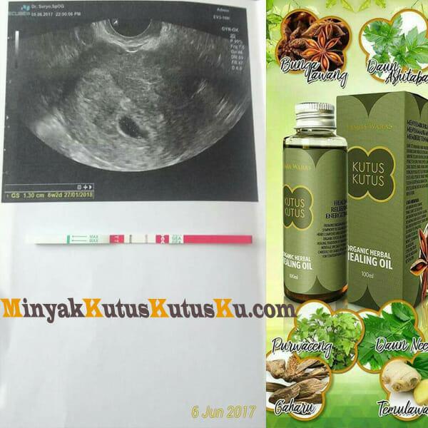 Minyak Kutus Kutus Membantu Kehamilan1