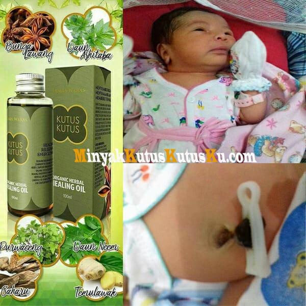 Minyak Kutus Kutus Membantu Pupak Pusar Bayi