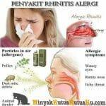 Minyak Kutus Kutus Sebagai Solusi Sehat Penyakit Rhinitis Alergi