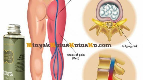 Terapi Minyak Kutus Kutus Penyembuhan Sakit Sciatica ( Nyeri Bokong Sampai Kaki )