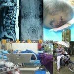 Testimoni Minyak Kutus Kutus Untuk Pasien Pembengkakan Pancreas dan Ginjal