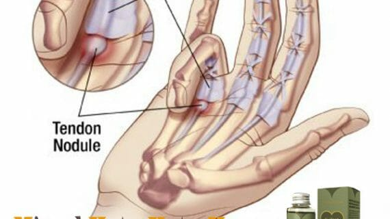 Testimoni Minyak Kutus Kutus dari Penderita Trigger Finger