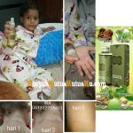 Testimoni Alergi Kulit Sembuh Dengan Minyak Kutus Kutus