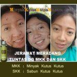 Jerawat Meradang Tak Kunjung Sembuh WA 0812.5227.0011