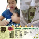 Nebulizer Atau Alat Terapi Pernapasan Menggunakan Minyak Kutus Kutus