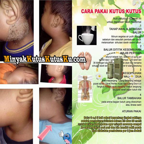 Infeksi Di Leher Sembuh Berkat Minyak Kutus Kutus