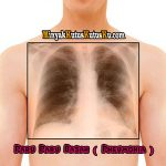 Minyak Kutus Kutus membantu penyembuhan Paru Paru Basah atau Pneumonia