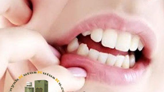 Sakit Gigi Tak Kunjung Sembuh Dikutusin Aja