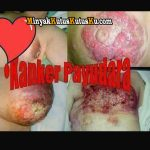 Terapi Kanker Payudara Stadium 3 dan 4 Dengan Minyak Kutus Kutus