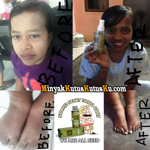 Testimoni Minyak Kutus Kutus Untuk Jantung Bocor WA 0812 5227 0011