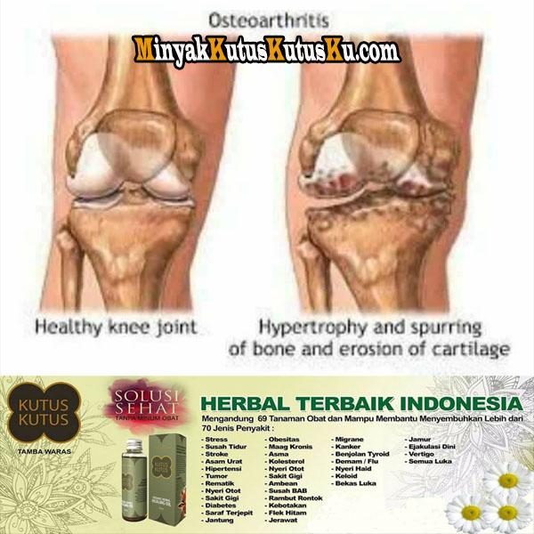 Nyeri Lutut Pada Lansia Minyak Kutus Kutus Solusinya