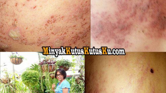 Penderita Lupus Atau Odapus Terkena Penyakit Herpes Gimana Penanganannya