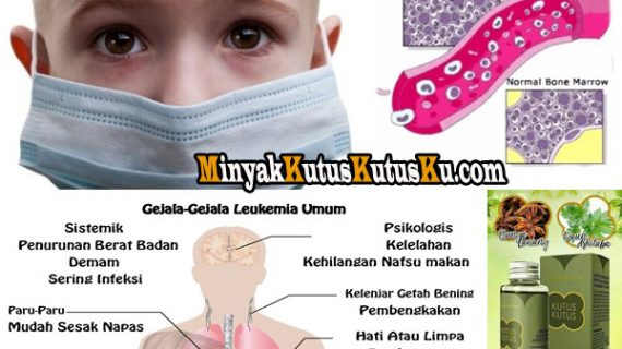 Terapi Penyakit Leukemia Atau Kanker Darah Menggunakan Minyak Kutus Kutus