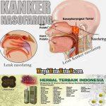 Kanker Nasofaring Apakah Bisa Sembuh Menggunakan Minyak Kutus Kutus