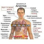 Cara Mengobati Anemia Dengan Minyak Kutus Kutus