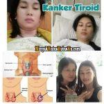 Penyembuhan Kanker Tiroid Menggunakan Minyak Kutus Kutus