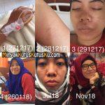 Jenis Penyakit Lupus SLE Bisa Sembuh Dengan Perantara Minyak Kutus Kutus