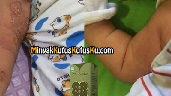 Benjolan Seperti Bisul Pada Bayi Mudah Disembuhkan Dengan Minyak Kutus Kutus