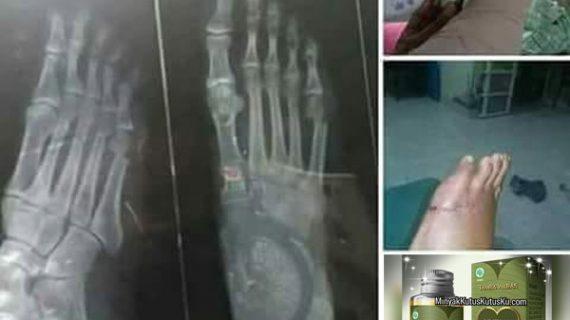 Testimoni Penggunaan Minyak Kutus Kutus Untuk Operasi Tulang Patah Dan Tendon Yang Putus
